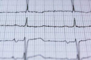 Comment savoir si vous faites une crise cardiaque ?